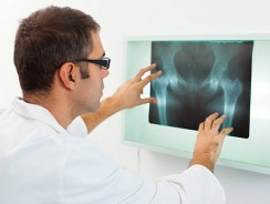 Hip Fracture Basics: Prevention and Treatment